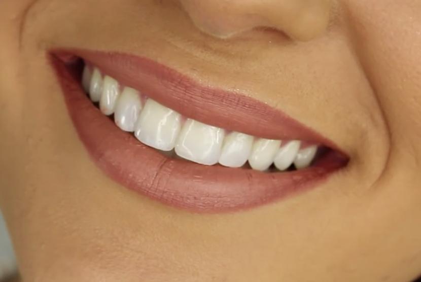 Menjaga kesehatan mulut sangat penting agar terhindar dari penyakit seperti sariawan.