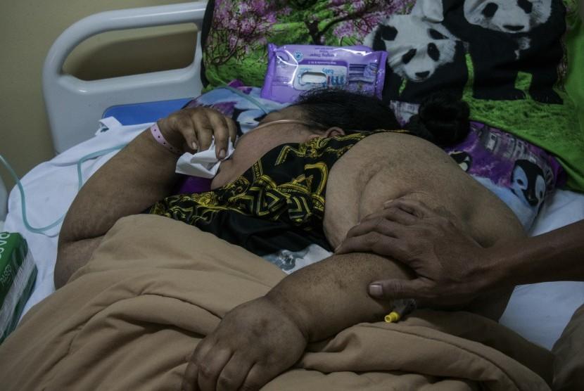 Pasien penderita obesitas asal Karawang berinisial S menjalani rawat inap di Rumah Sakit Dr. Hasan Sadikin, Bandung, Jawa Barat, Senin (4/2/2019).