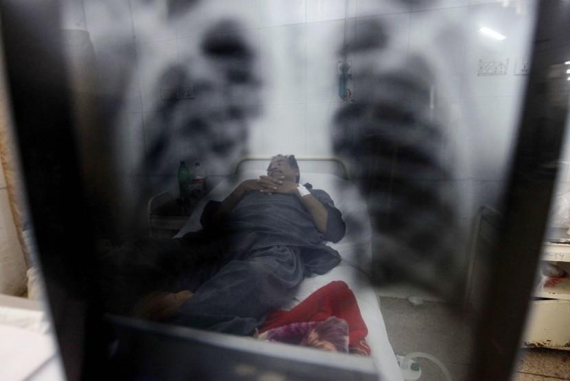 Pasien Tuberkulosis melihat hasil ronsen dadanya. Indonesia, India, China, menjadi tiga negara penderita TBC terbesar dunia.
