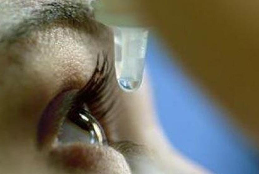 Pemakaian obat tetes mata (ilustrasi).
