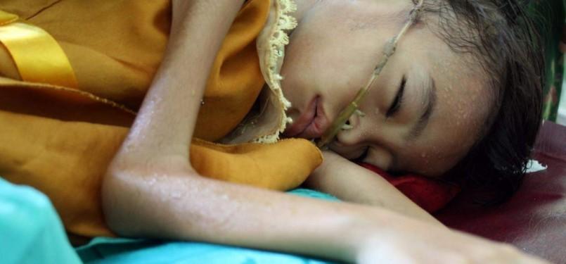 Penderita gizi buruk, tergolek lemas, di Rumah Sakit (ilustrasi).
