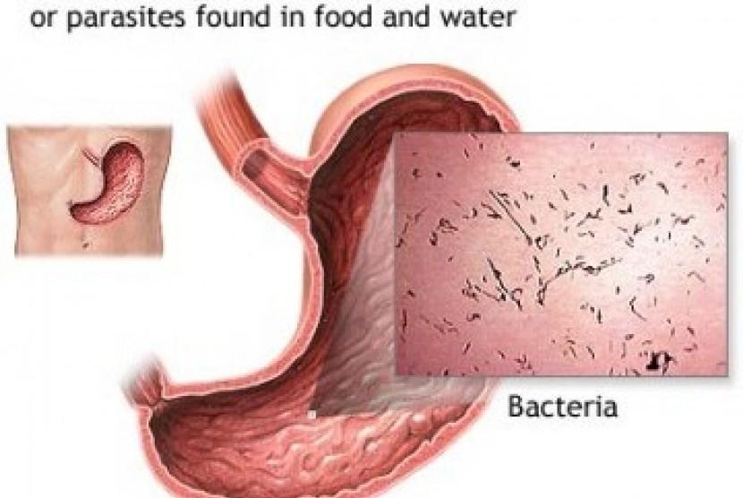 Penyakit diare (ilustrasi).