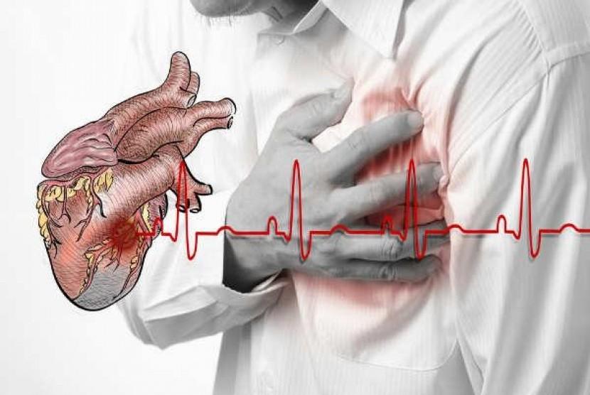 Penyakit kardiovaskular (ilustrasi)