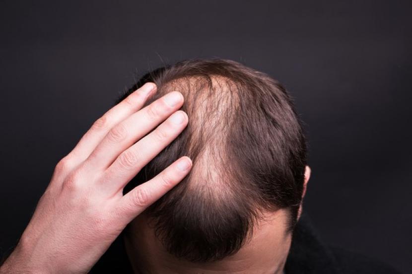 Penyebab dan cara mengatasi rambut rontok pada pria (ilustrasi).