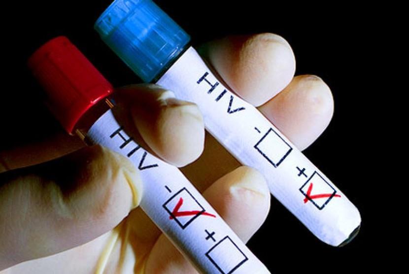 Positif mengidap HIV (ilustrasi)