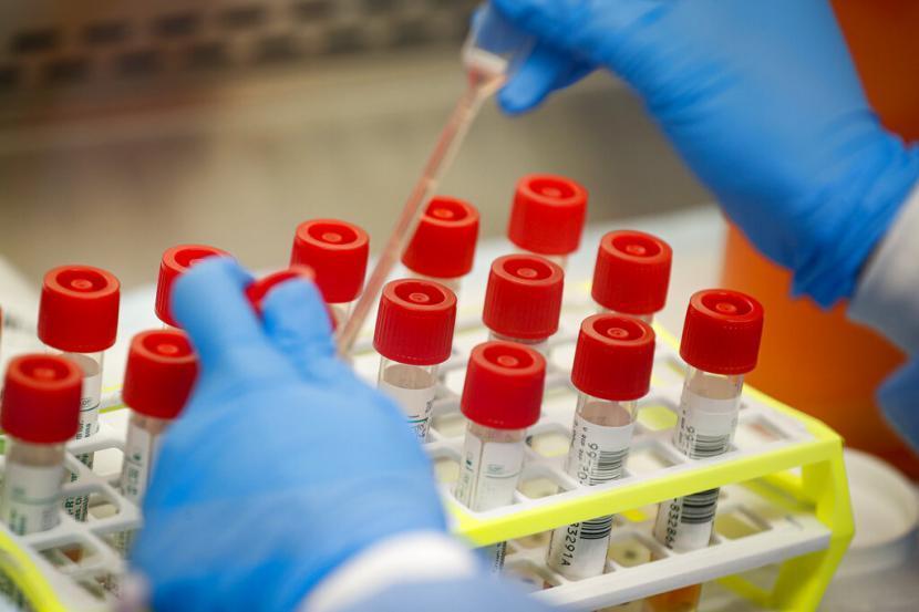 DPR Mestinya Memahami Prioritas Rapid Test Corona