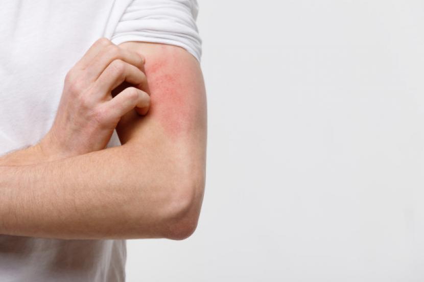 Ruam kulit (Ilustrasi). Tidak ada komplikasi kulit utama yang terlihat pada orang pascavaksinasi sehingga masyarakat tidak perlu ragu untuk mendapatkan vaksin Covid-19.