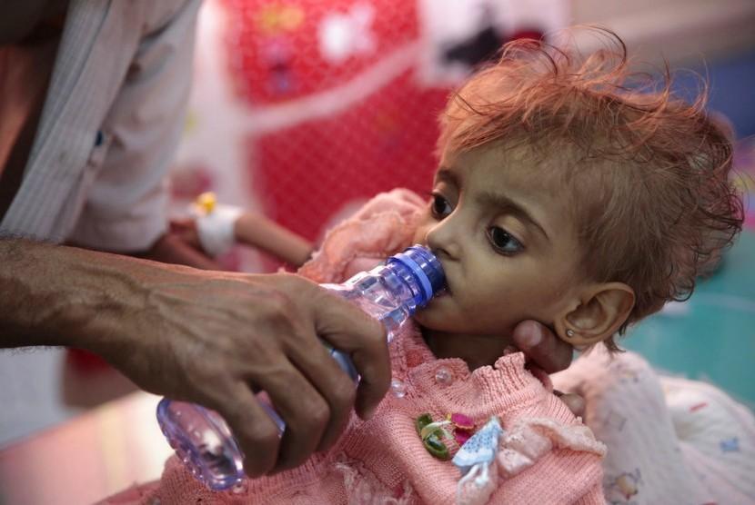 Seorang anak diberi minum di sebuah RS di Hodeida, Yaman. PBB sudah menyatakan krisis ekonomi dan kekerasan di Yaman menyebabkan anak-anak dan keluarga telantar tanpa makan, minum, dan sanitasi.
