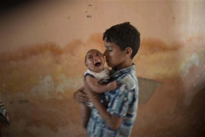 Seorang bayi yang ibunya terinfeksi virus zika lahir dengan kondisi microcephaly atau otak lebih kecil dari ukuran normal.