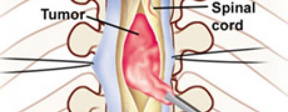tumor di tulang belakang