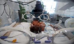 RSUD Moewardi Berhasil Operasi Pemisahan Bayi Kembar Siam