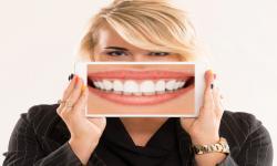 4 Cara Agar Gigi Sehat Selain Menyikatnya