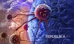 Hati-Hati, GERD Bisa Tingkatkan Risiko Kanker
