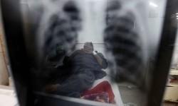 Dilema Pasien Tuberkulosis di Masa Pandemi Covid-19