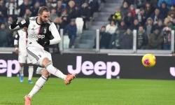 Higuain Absen di Laga Juventus Kontra Milan