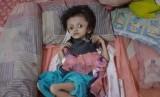 Davina (9) anak dari pasangan Yudi dan Wiwin mengidap penyakit Hidrosefalus (pembengkakan pada kepala) saat ini hanya terbaring kaku dirumahnya.