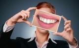 Ada sejumlah kebiasaan yang tanpa disadari bisa memicu munculnya noda di gigi (Foto: Ilustrasi Gigi Sehat)