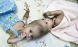 Bayi kembar Siam yang berhasil dioperasi di Rumah Sakit Anak London's Great Ormond Street, London, Inggris, Ahad (18/9).