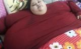 Eman Ahmed Abd El Aty, perempuan Mesir dengan berat ditaksir 500 kg