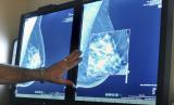Hasil mammogram payudara, tes untuk mendeteksi kanker. Sebuah studi mengindikasikan bahwa MRI sebagai pelengkap mammogram pada perempuan dengan payudara padat dapat membantu menemukan kanker, tapi juga banyak alaram palsu yang dibunyikan.