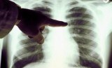Kematian Akibat Kanker Paru di Indonesia Meningkat pada 2020