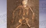 Kerangka manusia (ilustrasi)