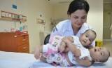 Bayi kembar siam (Ilustrasi). Rumah Sakit Umum Pusat (RSUP) H Adam Malik Medan, Sumatra Utara, kembali membantu kelahiran bayi kembar siam.