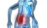 Sakit punggung (ilustrasi)