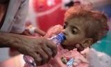 Seorang ayah memberi air kepada anaknya yang mengalami kekurangan gizi di sebuah rumah sakit di Yaman. (AP: Hani Mohammed)